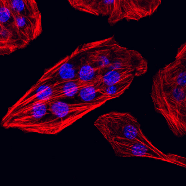 Murine Breast cancer cell line TSA stained with phalloidin and DAPI  Image by Claudio Raimondi, Centre of Diabetes