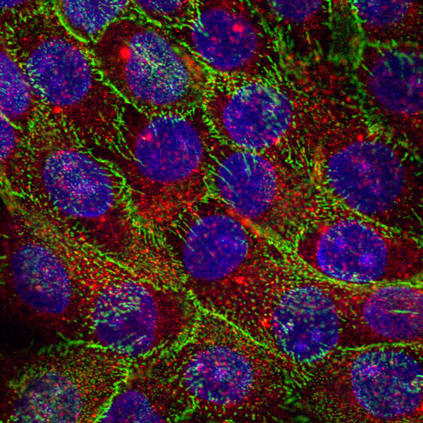 NEB1 Gli1 over-expressing cells stained for Gli1 gene  Image by Muhammad Pirzado, Centre for Cutaneous Research