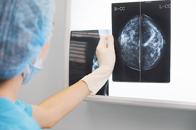 Screening linked to 60% lower risk of breast cancer death in first 10 years