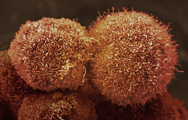 Pancreatic cancer cells. CC BY-NC Credit: Anne Weston, Francis Crick Institute