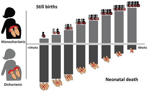 Graph showing the change in risk of stillbirth and neonatal death