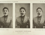 A photo by Albert Londe of a 'hysterical' woman taken around 1890. Wellcome Library