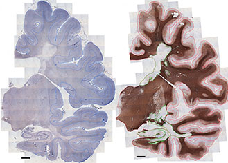 Examples of two MS brain slices stained to show different compounds