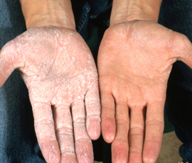 An image demonstrating the appearance of hands following immersion in water