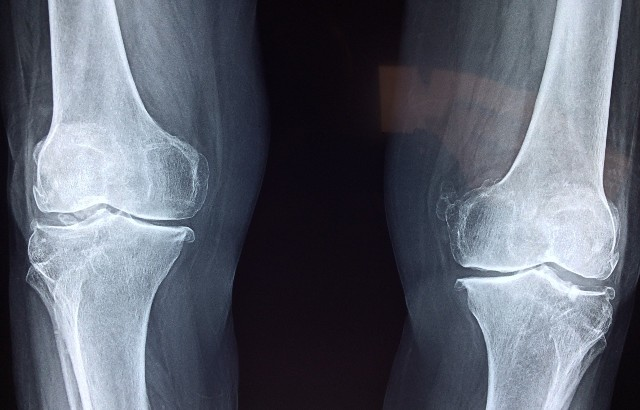 Knee x-ray. Image by Dr. Manuel González Reyesa from pixabay